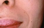 鼻唇溝のシワ