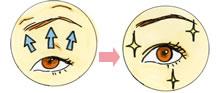 眼瞼挙筋という筋肉を操作