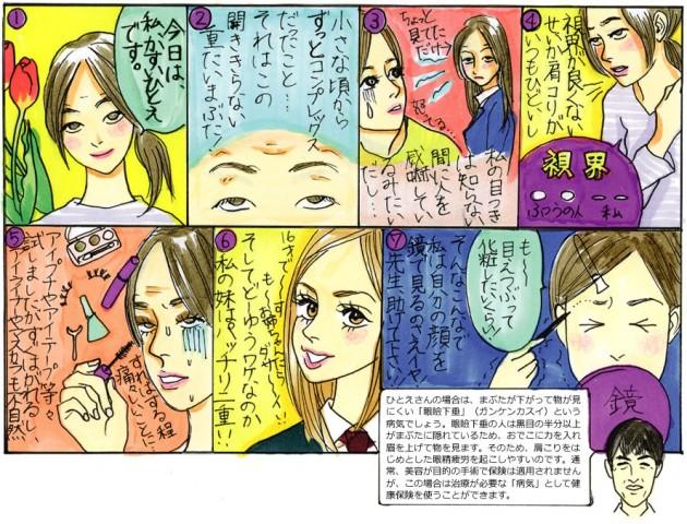 """Chapter""""4"""" 若い人の眼瞼下垂"""