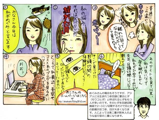 "Chapter""5"" 目頭切開"