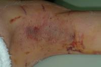 手術後一週間目